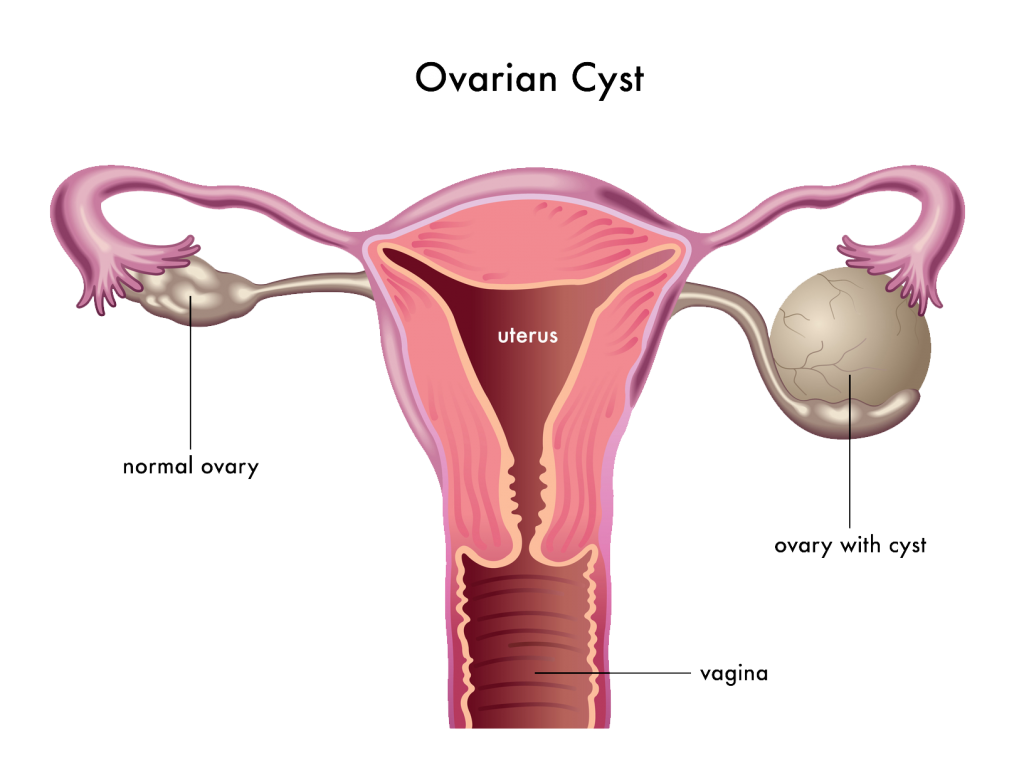 ovarian cyst treatment singapore