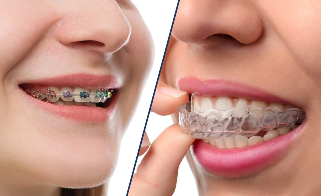 How To Find The Best Dental Clinic In Kolkata