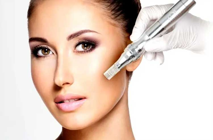 Is Microneedling In London Worth The Money?